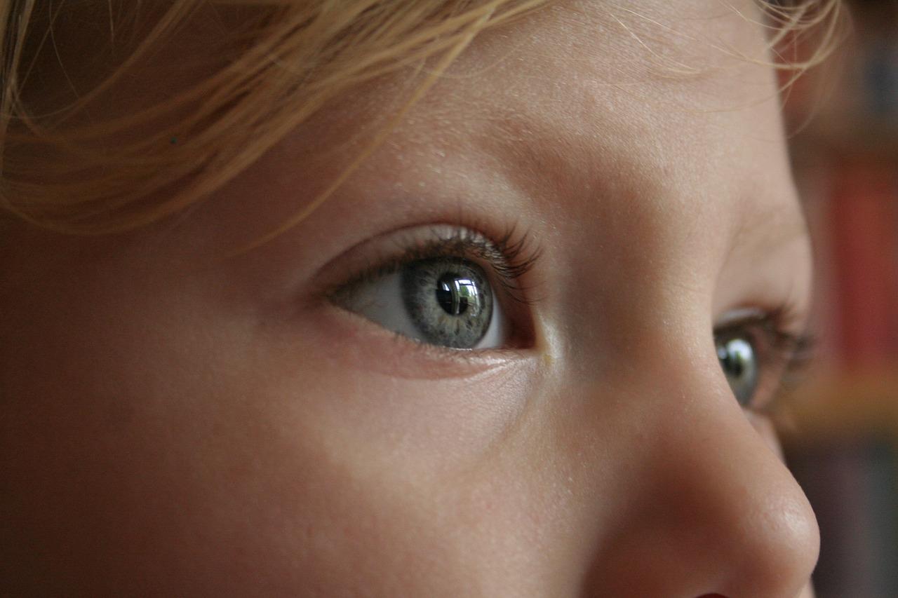 La maladie d'hyperpilosité chez les femmes