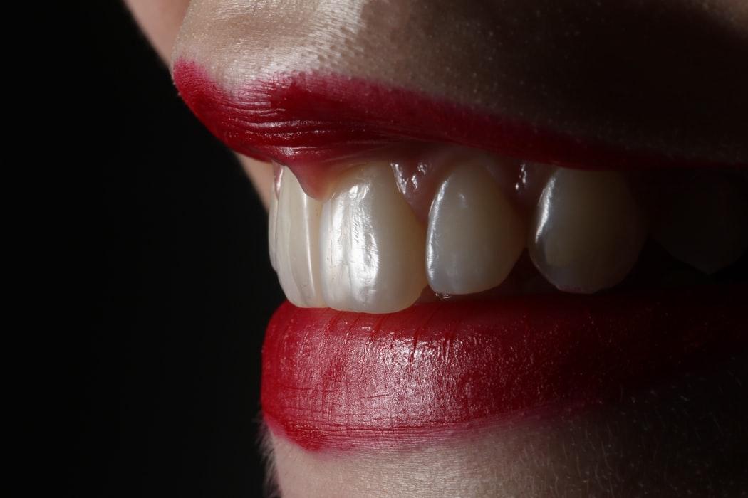 You are currently viewing La mauvaise hygiène dentaire, une causes de nombreuses maladies